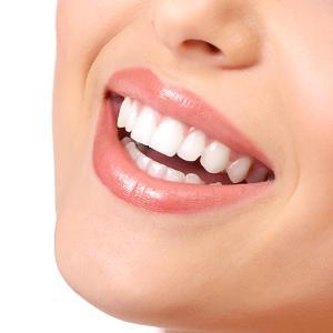 капы для отбеливания зубов отзывы