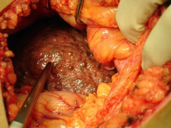 Как лечат метастазы рака почки