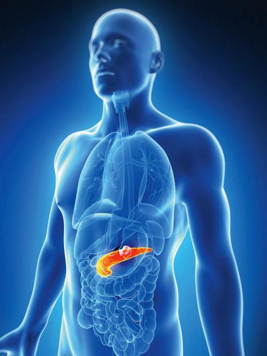 Хронический панкреатит стадии заболевания лечение