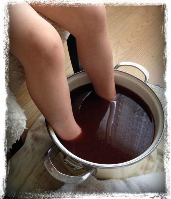 Лечение микозов у детей