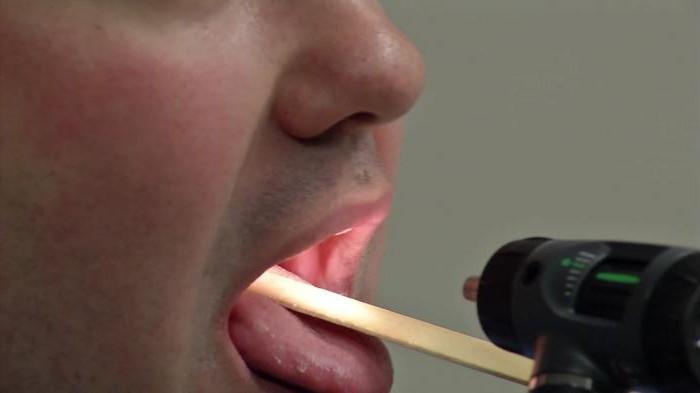 Средства для лечения горла 25