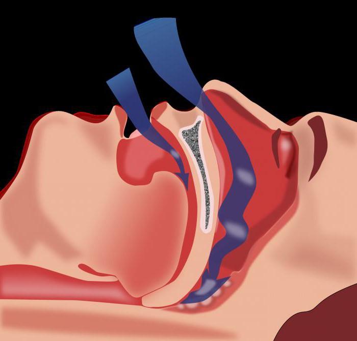 Лечение стенокардии напряжения фк3