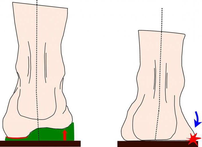 ортопедическая