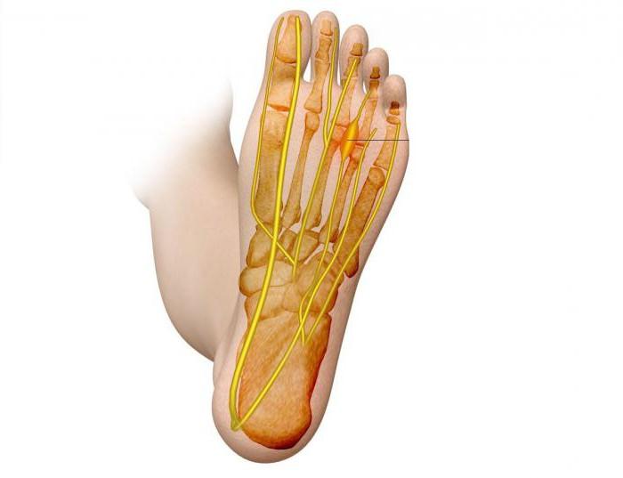Боли в стопе под пальцами при ходьбе чем лечить народные средства