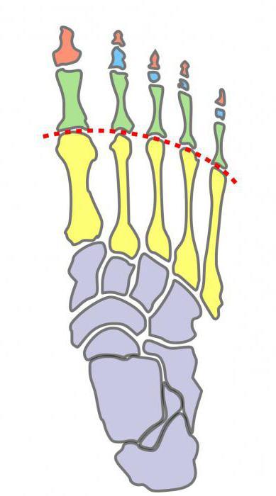 Боли в стопе под пальцами при ходьбе лечение народными средствами