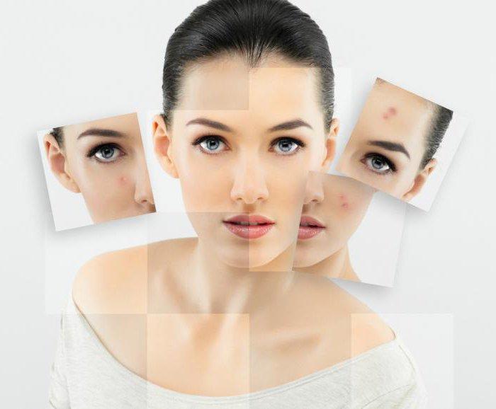 Комедоны на лице причины лечение