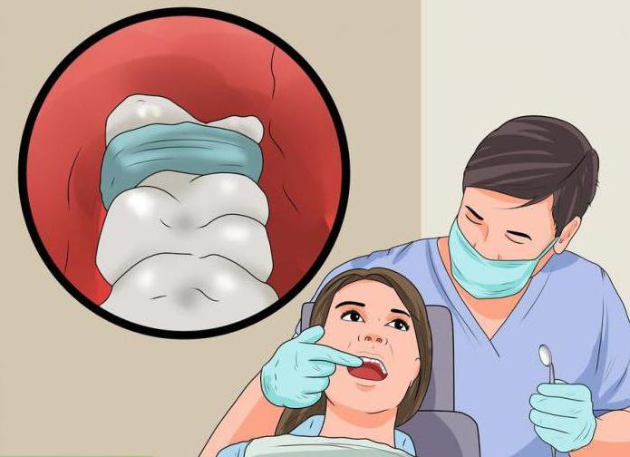 альвеолит лікування