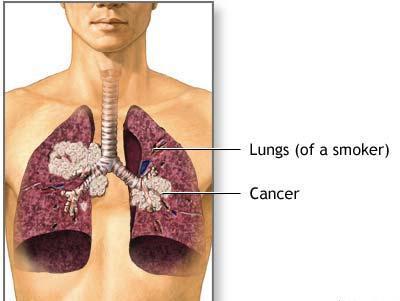 Аллергический фарингит симптомы и лечение фото