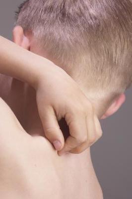 Аллергия на укусы мошек