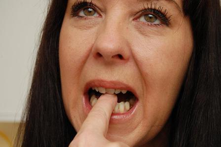 после лечения зуба запах изо рта