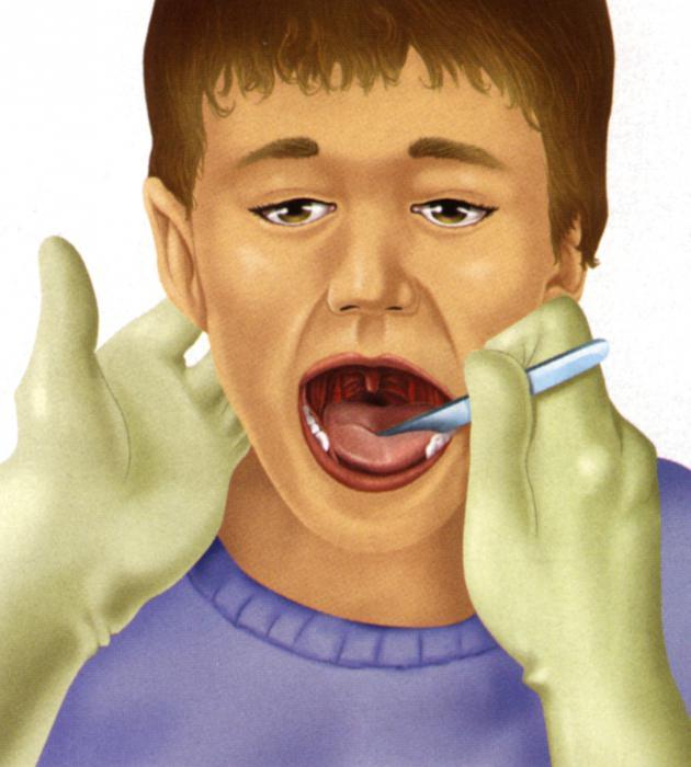 после удаления миндалин запах изо рта