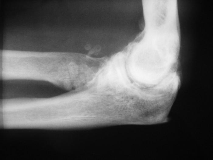 Болят локтевые суставы причины