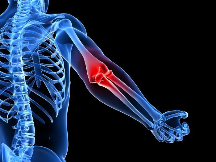 Болят локтевые суставы причины лечение