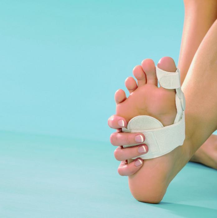 Кривые пальцы на ногах что делать