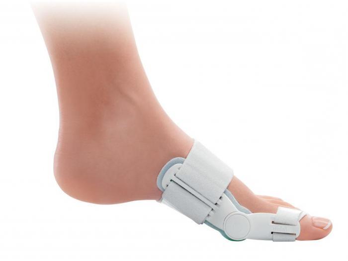 Почему растут шишки на ногах возле больших пальцев