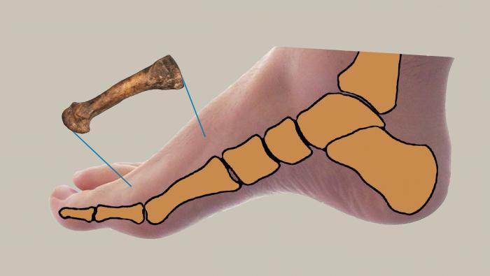 Шины от косточки на ноге. Видео отзывы врачей