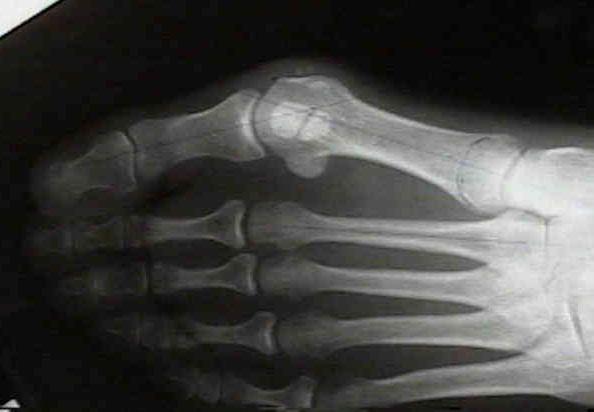Выпирающая косточка на ноге причины возникновения и лечение