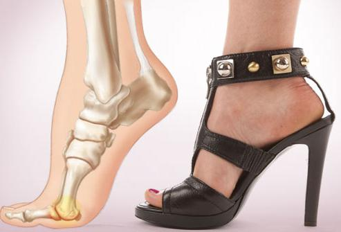 Почему опухает косточка на ноге