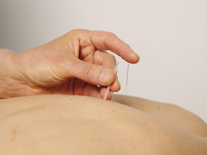 Ком в горле при остеохондрозе шейного отдела отзывы
