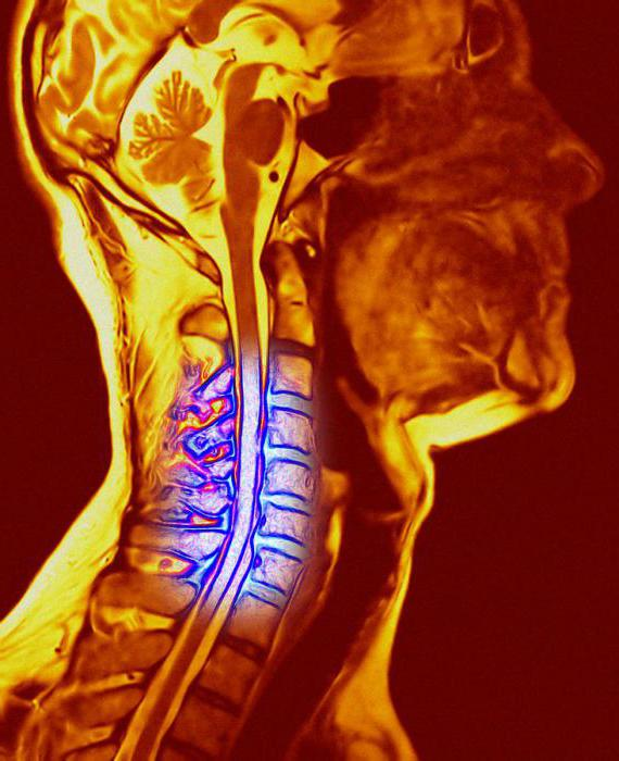 Ком в горле при остеохондрозе шейного отдела симптомы