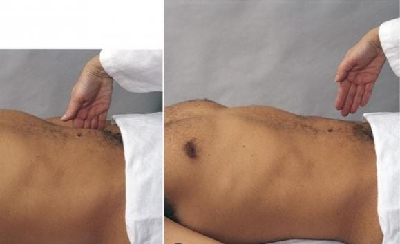 симптом щеткина блюмберга при аппендиците