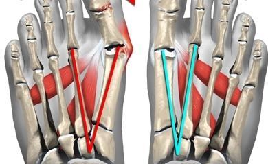 Анатомические особенности стопы