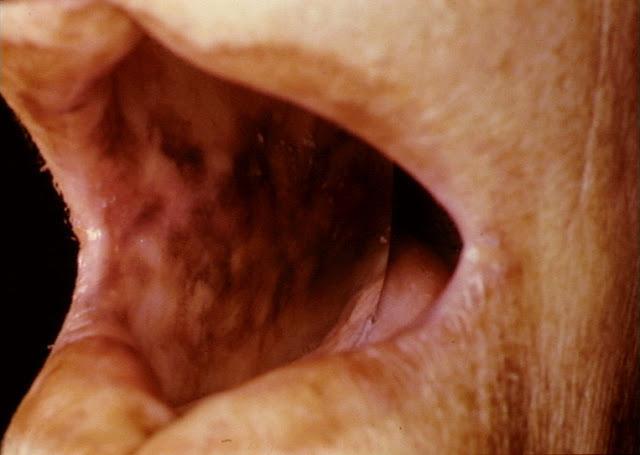 Лечение болезни пейрони в воронеже