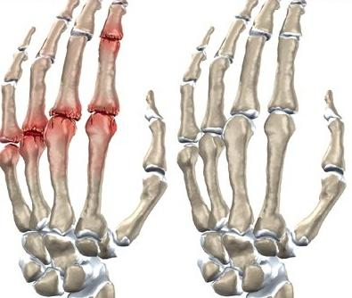 Причины артрита