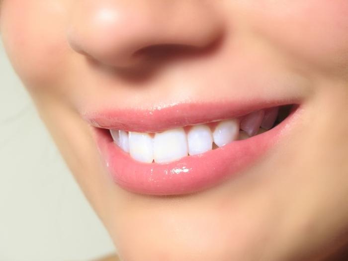 отбеливания зубов отзывы