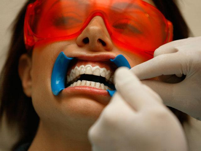 отбеливание зубов цены