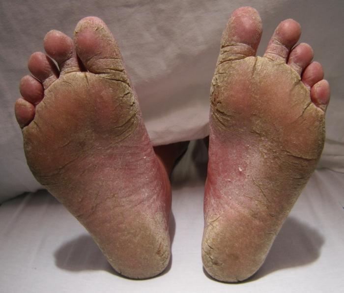 Как избавится от грибка пальцев ног