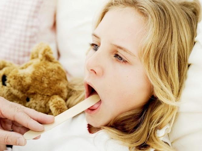 Ангина у детей - причины, симптомы, диагностика и лечение 30