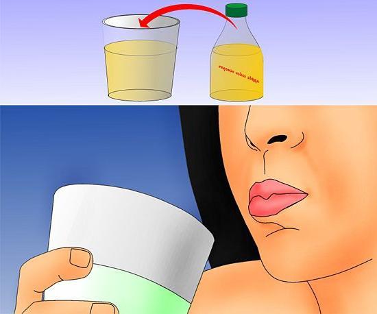 Как вылечить молочницу быстро