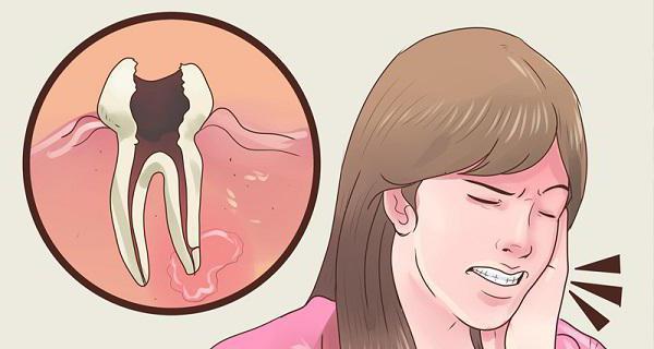 что делать если болят все зубы сразу