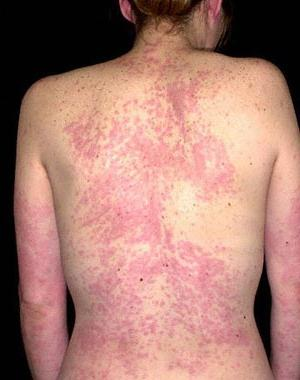 как лечить аллергию после антибиотиков