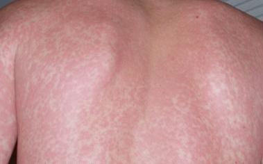 Сыпь на теле сифилис Коллекция изображений