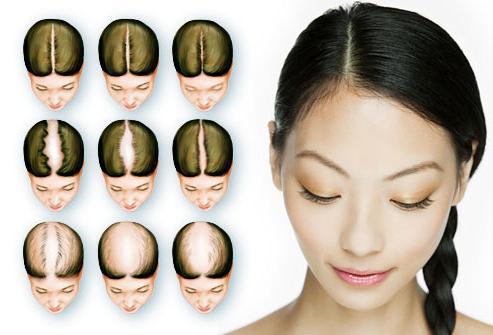 Как восстановить волосы при облысении у женщин
