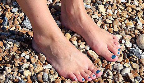 Косточка на ноге как лечить народными средствами в домашних условиях