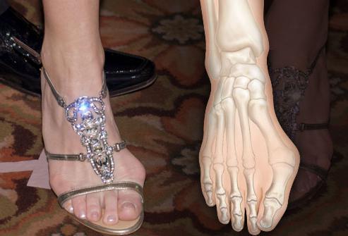 Возможные причины боли в большом пальце ноги
