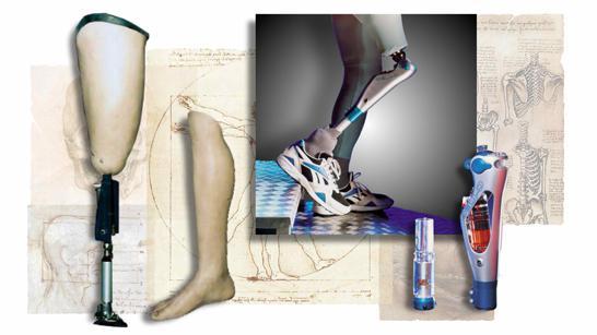 ампутация ноги реабилитация