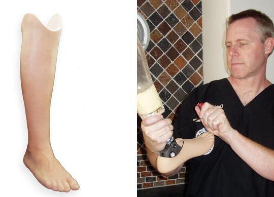 ампутация ноги при сахарном диабете