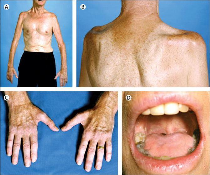 БАС (заболевание): симптомы и методы диагностики