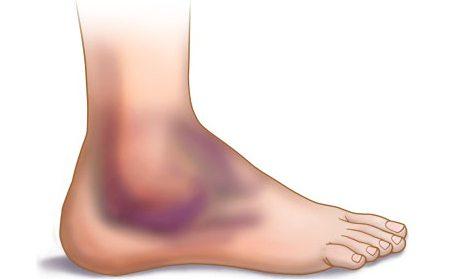 сильное растяжение связок на ноге