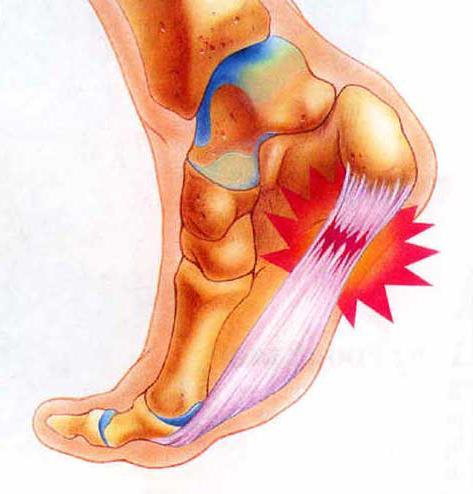 растяжение связок на ноге лечение