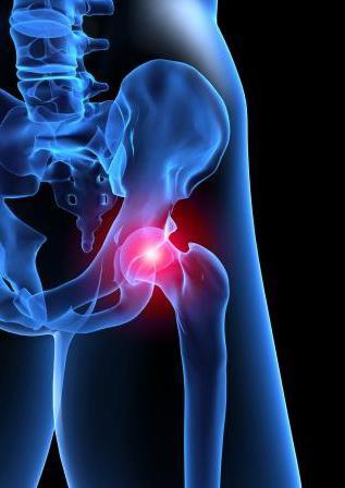 признаки болезни тазобедренного сустава