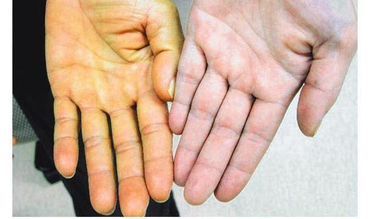 Паренхиматозная желтуха: симптомы, предпосылки, диагностика