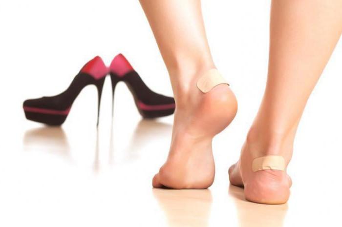 что делать если обувь натирает пятку