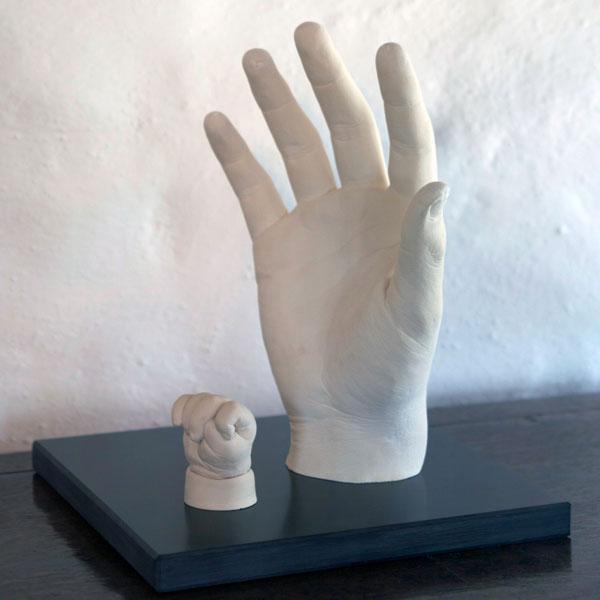 Рука из гипса