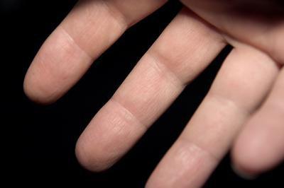 инсульт немеет правая рука Немеет рука после инсульта ⋆ Лечение Сердца