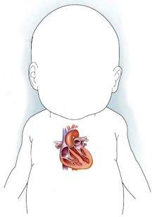 Шумы в сердце у ребенка 2 года